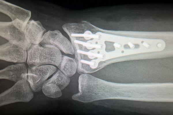broken bones  trampoline park injuries