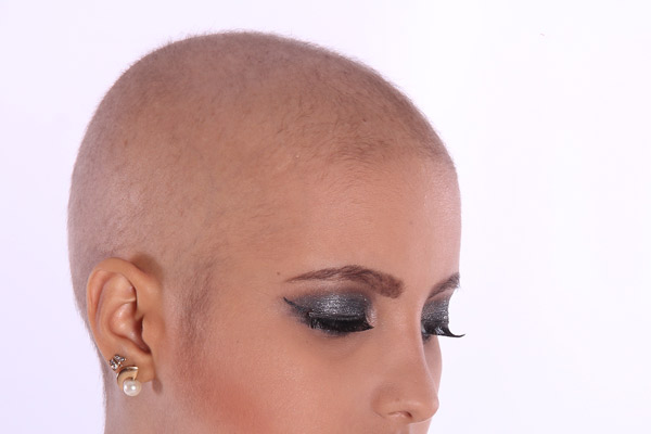 breast cancer hair loss - misdiagnosis attorney