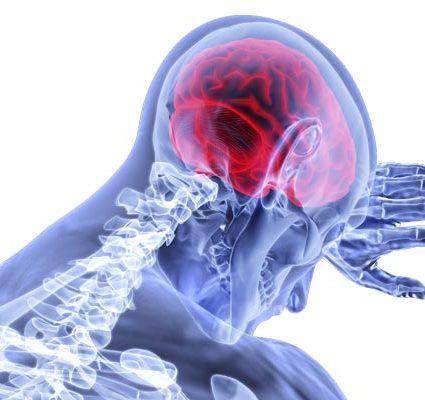 mild traumatic brain injury lawyer